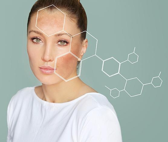 Gesichtspflege gegen Pigmentflecken
